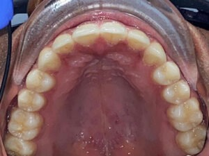 , Adult Orthodontics Gallery